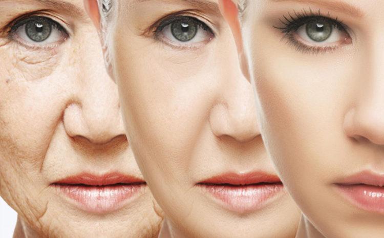Συνδυασμός Υαλουρονικού οξέος και Βοτουλινικής τοξίνης στο πρόσωπο